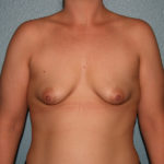 Congenital Breast Surgery