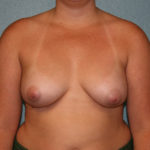 Ideal Breast Implants