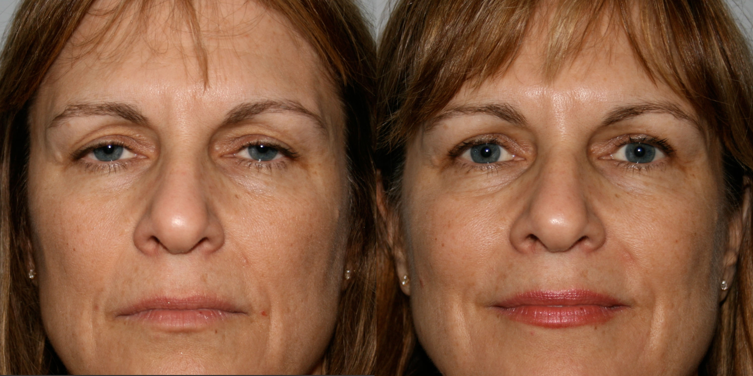 Before and After eyelid lift blepharoplasty photos