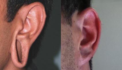 Stretched Earlobe Repair before and after