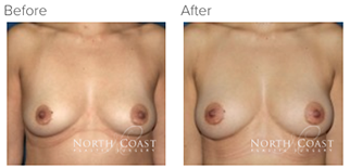 Before and After Natural Breast Augmentation photos
